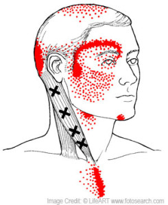 trigger points help reduce pain